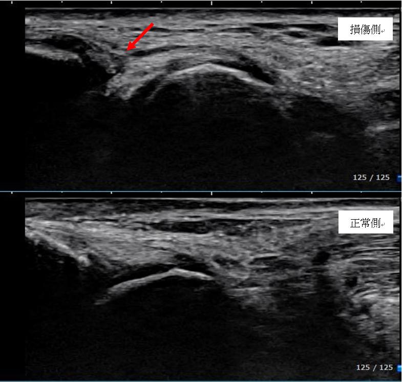 足関節前距腓靭帯の損傷側と健側の画像
