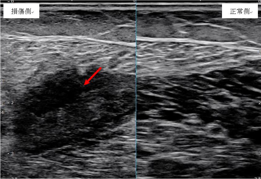 腓腹筋損傷の損傷側と健側の画像
